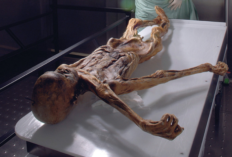 Otzi in laboratory