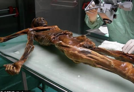 Naturally preserved Otzi